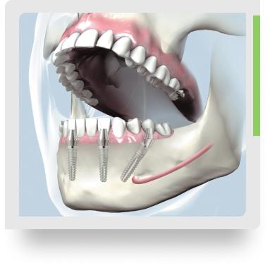 зубы за один день